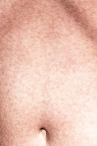 Victoria 4 SkinVue9 Procedural Close Up